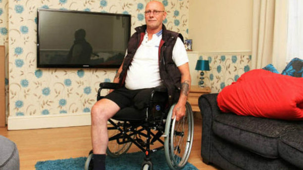 "One-Legged Man In Very Poor Health  Deemed ""Fit to Work"" By Benefits Agency"